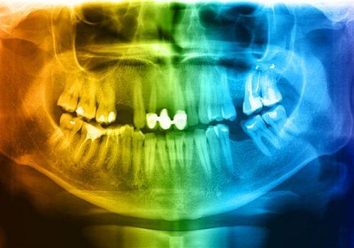 dental images parkmall dental