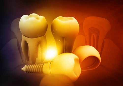 dental implant image parkmall dental