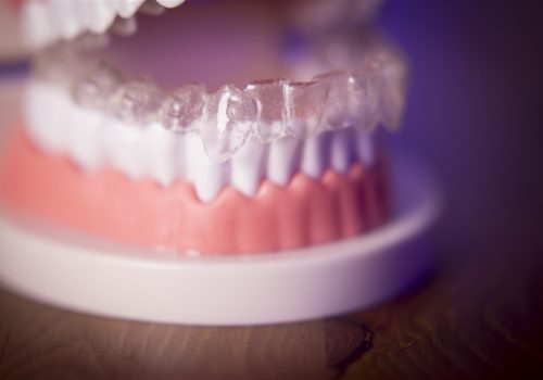 teeth wirg invisalign parkmall dental